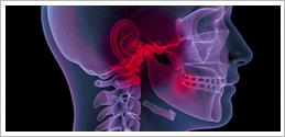 Cranio-Mandibuläre Dysfunktion