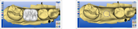 Guided Implantology